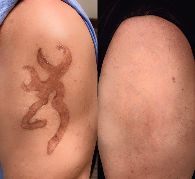 Natural Tattoo Removal | Brannick Clinic of Natural Medicine