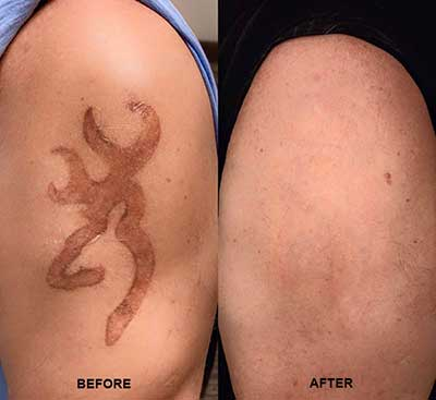 Non-Laser Tattoo Removal - Before & After   Brannick Clinic of Natural Medicine