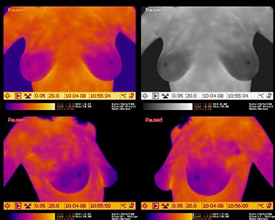 Breast Thermography   Brannick Clinic of Natural Medicine